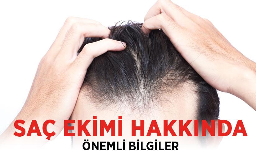 Saç ekimi ile ilgili bilgi ve tecrübelerim…